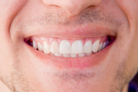 Close-up of healthy white teeth of smiling man male. Body part - mouth.
