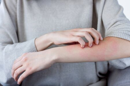 Closeup girl is scratching her hand with nails. Reddened, inflamed body parts causes discomfort and itching. Young woman is suffering from bouts of allergies. Dermatological skin diseases concept.