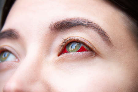 Closeup of female green eye stained with red blood. Ð¡onsequences of surgery, intravitreal administration of medicinal product. Treatment of macular degeneration. Violence concept. Vision diseases.
