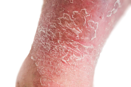 autoimmune: Psoriasis skin. Psoriasis is an autoimmune disease that affects the skin cause skin inflammation red and scaly.