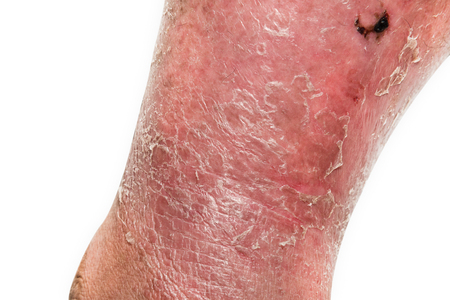 the lesions: Psoriasis skin. Psoriasis is an autoimmune disease that affects the skin cause skin inflammation red and scaly.