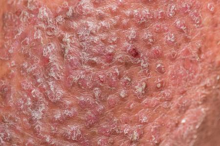 건선 피부. 건선은 피부에 영향을 미치는자가 면역 질환으로 붉은 색과 비늘 모양의 피부 염증을 유발합니다. 스톡 콘텐츠 - 80897104