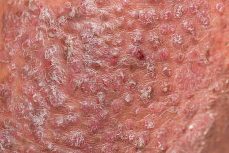Psoriasis skin. Psoriasis is an autoimmune disease that affects the skin cause skin inflammation red and scaly. Imagens - 80897104