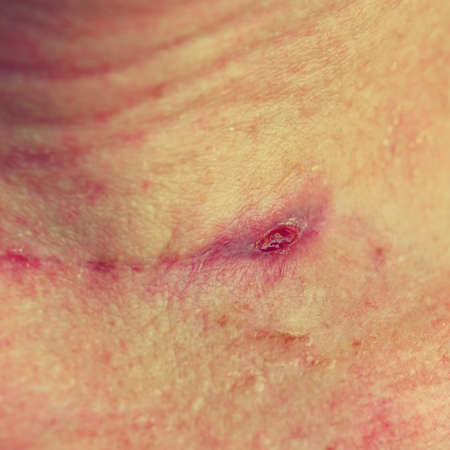 Freshly healed scar on the neck after thyroid surgery. 写真素材 - 166647357