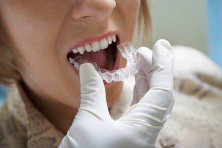 health facility: Woman Getting Dental Mold Made LANG_EVOIMAGES