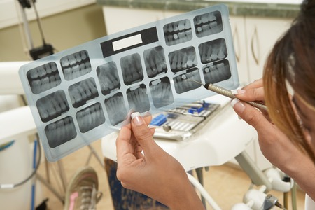 Dentist Examining X-rays Stock Photo - 5404614