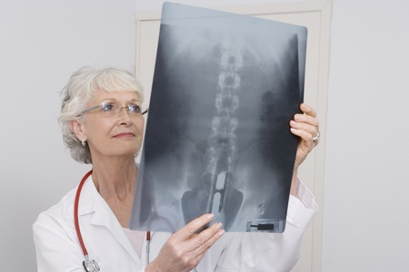 one senior woman only: Senior medical practitioner examines xray