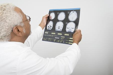Senior healthcare professional examines xray Stock Photo - 12738079