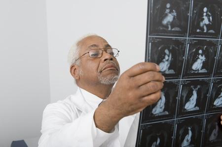 Senior healthcare professional examines xray Stock Photo - 12738080