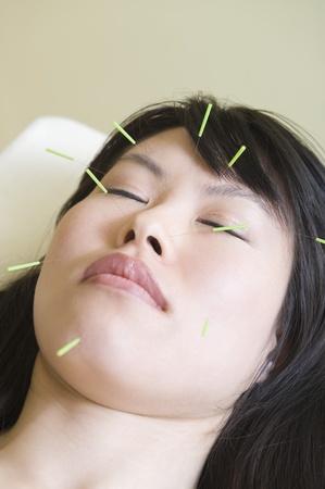 Femme asiatique avec des aiguilles d'acupuncture dans ses yeux le visage fermé