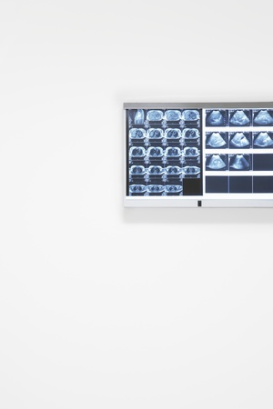 X-rays and ultra sound results hanging on wall Stock Photo - 18884951