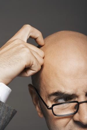 bald man: Hombre de negocios calvo con gafas rascarse alta sección de la cabeza