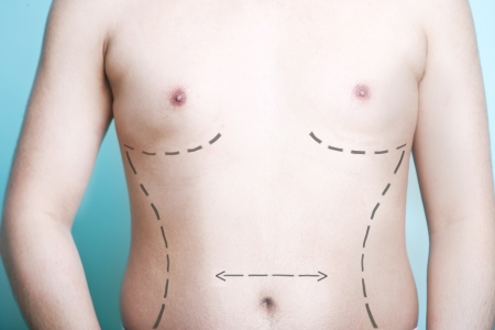 male parts: Close-up view of mans body with plastic surgery line markings