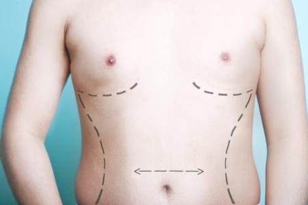 partes del cuerpo humano: Vista de primer plano del cuerpo del hombre con marcas de la l�nea de la cirug�a pl�stica