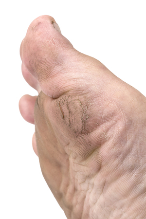Image of cracked heels, caused by the epidermis on the heel, lack of moisture, dry sesame. And those who like to walk barefoot without shoes, It is also a cause of heel fracture as well.
