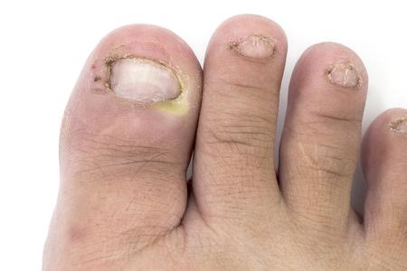 Pilz der Fußnahaufnahme, lokalisiert auf weißem Hintergrund. Das Konzept Dermatologie, Behandlung von Pilz- und Pilzinfektionen beim Menschen. Makrophotographie-Menschenparasiten. Hinterer Hintergrund eines Dermatologen. Standard-Bild - 96838580