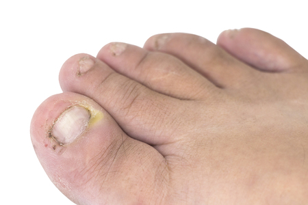 Fungus of foot close-up, isolated on white background. The concept dermatology, treatment fungal and fungal infections in humans. Macro photograph human parasites. Rear background of a dermatologist.