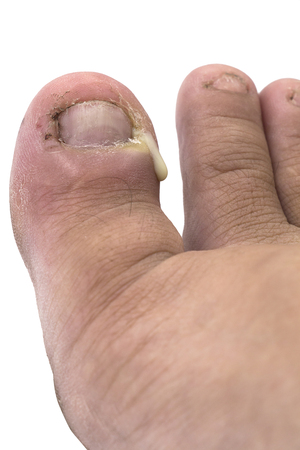 Figure out the nail, Accident nail trauma, bleeding toe nails, Foot ulcers figure out a nail, Onychocryptosis
