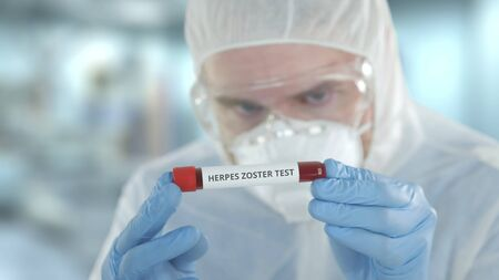 Unknown laboratory assistant wearing protection suit examines vial with herpes zoster test