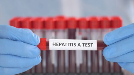 Laboratory assistant wearing protection gloves holds vial with hepatitis A test