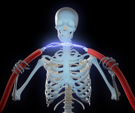 electric shock: Un esqueleto sostiene cables de alta tensión con una descarga eléctrica entre ellos Foto de archivo