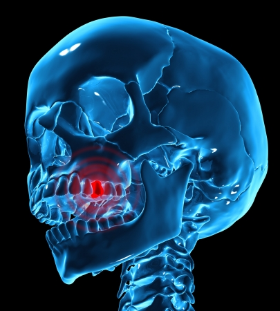 Toothache medical illustration