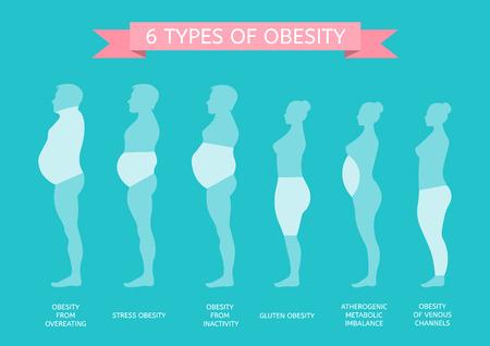 6 Arten von Fettleibigkeit. Männliche und weibliche Figur im Profil Vektorgrafik