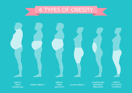 6 Types of Obesity. Male and female figure in profile