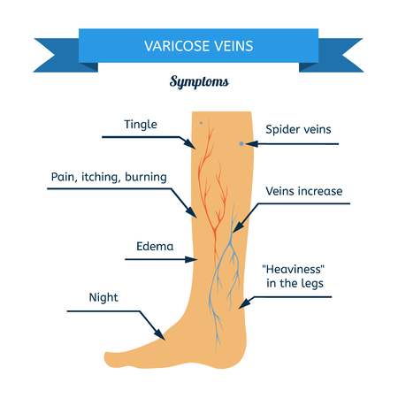 Symptoms of varicose veins. Women leg veins in profile  イラスト・ベクター素材