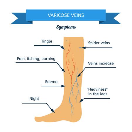 Symptoms of varicose veins. Women leg veins in profile Illustration