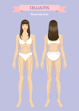 Beautiful young woman. Areas of development of cellulite. Infographics