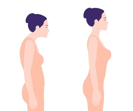 Jonge vrouw met een verkeerde houding. Rachiocampsis. Profiel. Vector illustratie op een witte achtergrond. minimalisme
