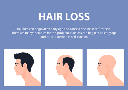 Stages of male pattern baldness, hair loss or alopecia on Asian men. Vector Flat Illustration