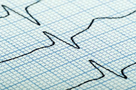 grid paper: cardiogram (aka electrocardiogram, aka ECG) of heart beat on blue grid paper