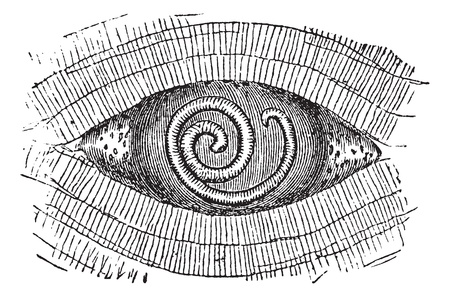 Pork Roundworm or Trichinella spiralis, showing larva found in between muscle fibers, vintage engraved illustration. Trousset encyclopedia (1886 - 1891). Vector