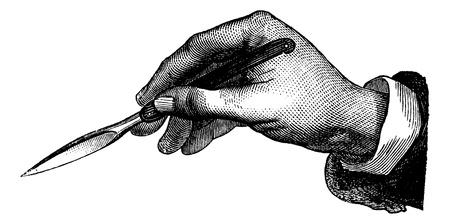 quirurgico: Posici�n del cuchillo en como una pluma, cosecha ilustraci�n grabada. Magasin Pittoresque 1875.