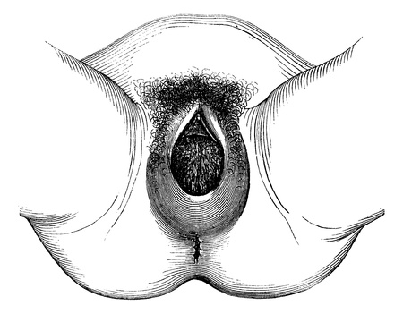 Perineal distention and dilation of the vulva, vintage engraved illustration. Magasin Pittoresque 1875. Vector
