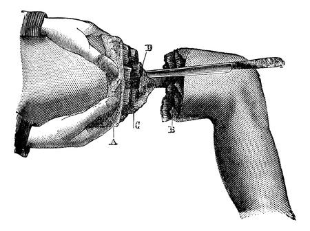 leg muscle: Secci�n del m�sculo, cosecha ilustraci�n grabada. Magasin Pittoresque 1875.
