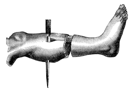 Amputation of the leg by the method has two flaps (formation of the second flap), vintage engraving  illustration. Magasin Pittoresque 1875.