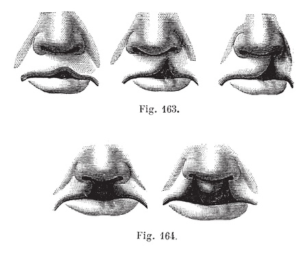 lips smile: Fig. 163. Degrees of cleft lip simple,  Fig. 164. Cleft lip double, vintage engraved illustration. Magasin Pittoresque 1875. Illustration