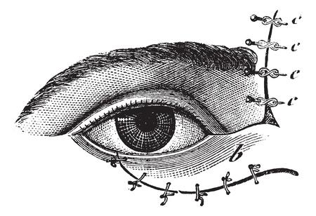 Fig. 178. Blepharoplasty by the method of Blasius, vintage engraved illustration. Usual Medicine Dictionary - Paul Labarthe - 1885.