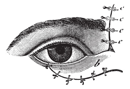 eyelid: Fig. 178. Blepharoplasty by the method of Blasius, vintage engraved illustration. Usual Medicine Dictionary - Paul Labarthe - 1885.