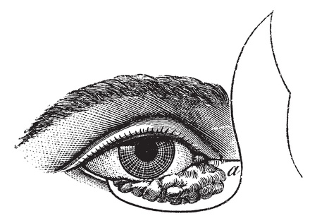 Fig. 177. Blepharoplasty by the method of Blasius, vintage engraved illustration. Usual Medicine Dictionary - Paul Labarthe - 1885. Vector