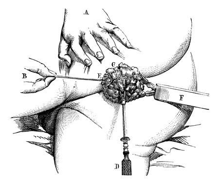 Removal of a hemorrhoidal pad with a linear crusher, vintage engraved illustration. Magasin Pittoresque 1875.