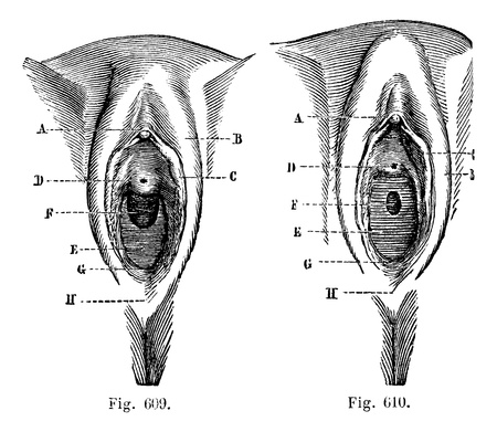 posterior: Fig. 609. Vulva in the little girl. Fig. 610. Vulva in the little girl, vintage engraved illustration. Magasin Pittoresque 1875.