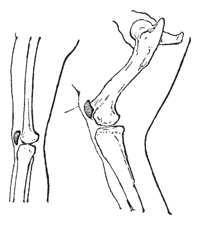 patella: Kneecap or Patella or kneepan, vintage engraved illustration. Dictionary of words and things - Larive and Fleury - 1895. Illustration
