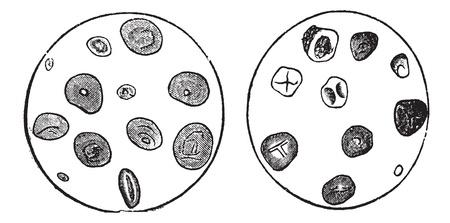granary: Amido di frumento (sinistra) e amido di mais (a destra), ingrandita, vintage illustrazione inciso. Trousset enciclopedia (1886 - 1891).