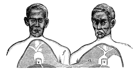 conjoined: Siamese twins. V. Vena cava. f. Upper limit of the common axis, vintage engraved illustration. Trousset encyclopedia (1886 - 1891). Illustration