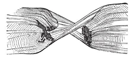 gönüllü: Torn Muscle Fiber, vintage engraved illustration. Trousset encyclopedia (1886 - 1891).