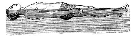 illustration technique: Back Float, vintage engraved illustration. Trousset encyclopedia (1886 - 1891). Illustration